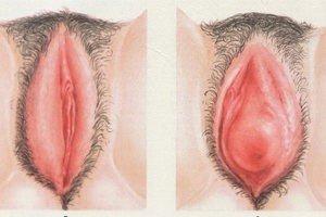 Кандидозный вульвит — симптомы и лечение