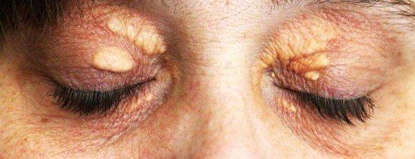 Ксантелазма — симптомы и лечение