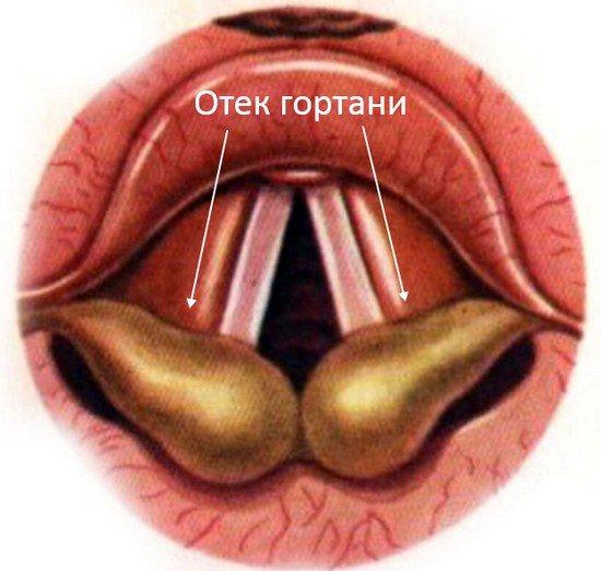 Отек гортани — симптомы и лечение