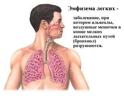 Эмфизема легких симптомы и лечение, фото и видео