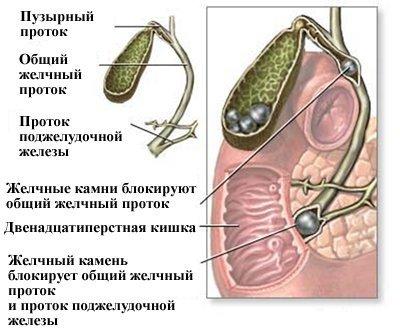 Желчная колика — симптомы и лечение