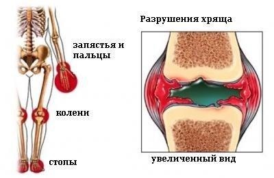 Ювенильный ревматоидный артрит — симптомы и лечение, фото и видео