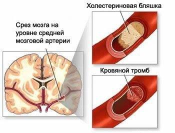 Ишемическая болезнь головного мозга — симптомы и лечение