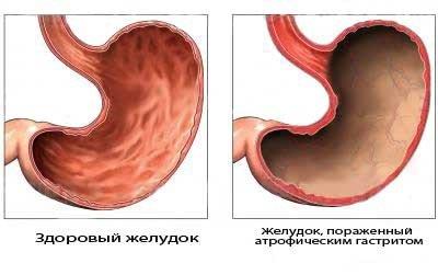 Хронический атрофический гастрит — симптомы и лечение