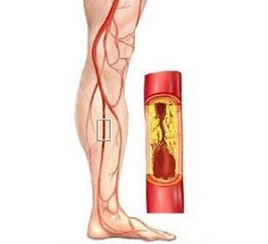 Облитерирующий эндартериит — симптомы и лечение