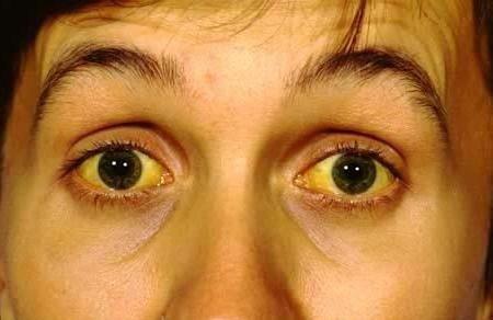 Болезнь Вильсона Коновалова — симптомы и лечение