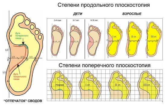 Плоскостопие — симптомы и лечение