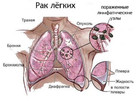 Рак легких — симптомы и лечение