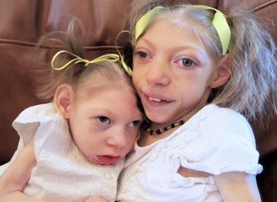 Кретинизм у детей — симптомы и лечение, фото и видео