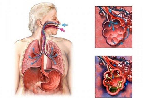 Аспирационная пневмония — симптомы и лечение, фото и видео