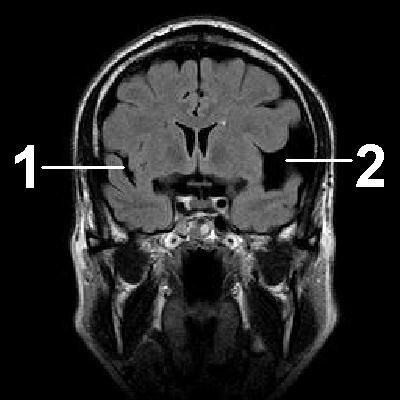 Арахноидит — симптомы и лечение