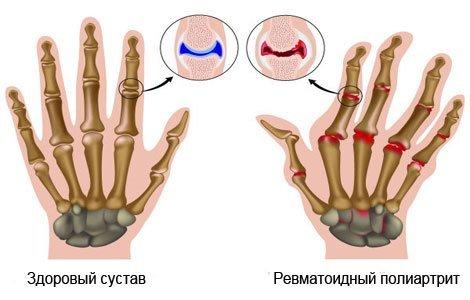 Ревматоидный полиартрит — симптомы и лечение