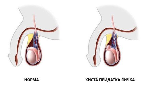 Сперматоцеле — симптомы и лечение