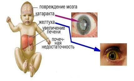 Галактоземия — симптомы и лечение, фото и видео