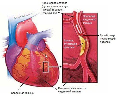 Инфаркт миокарда — симптомы и лечение