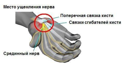 Туннельный синдром — симптомы и лечение