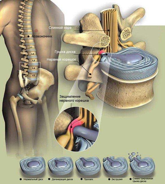 Грыжа поясничного отдела позвоночника — симптомы и лечение