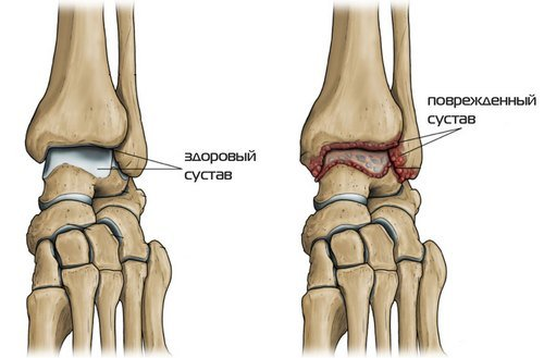 Остеоартроз голеностопного сустава — симптомы и лечение