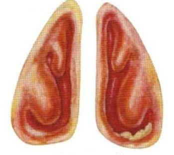 Атрофический ринит — симптомы и лечение