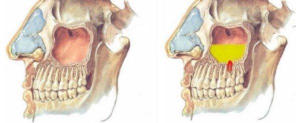 Одонтогенный гайморит — симптомы и лечение