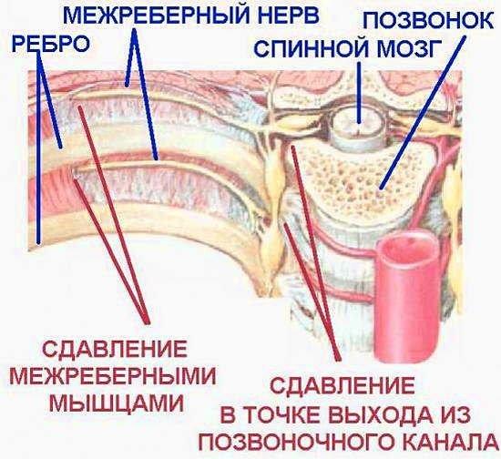 Миалгия — симптомы и лечение
