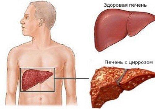 Печёночная кома — симптомы и лечение