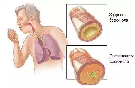 Аллергический бронхит — симптомы и лечение
