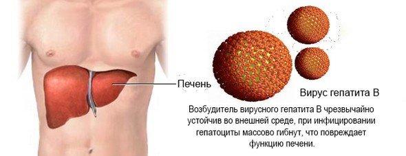 Вирусный гепатит — симптомы и лечение, фото и видео