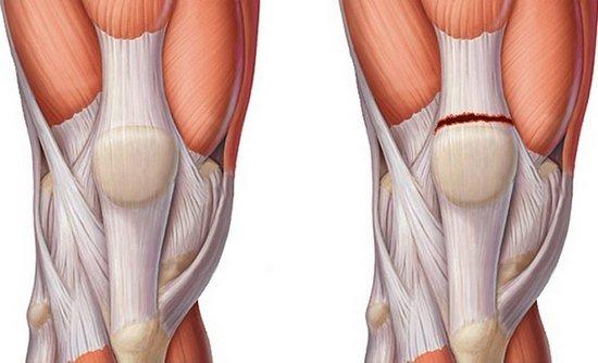 Разрыв сухожилия — симптомы и лечение