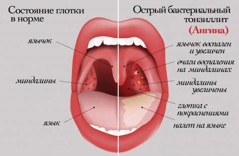 Ангина у детей — симптомы и лечение, фото и видео