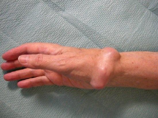 Рак костей — симптомы и лечение