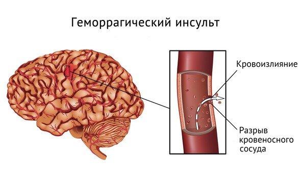 Геморрагический инсульт — симптомы и лечение