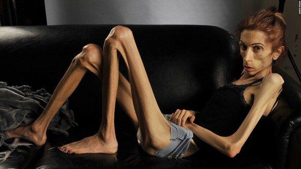 Кахексия — симптомы и лечение, фото и видео