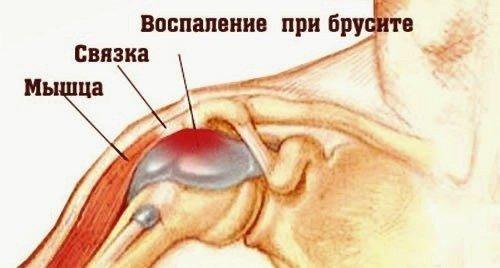 Бурсит плечевого сустава — симптомы и лечение