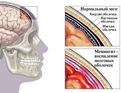 Вирусный менингит: симптомы и лечение