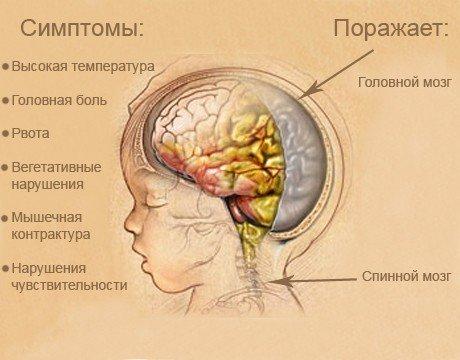 Туберкулезный менингит — симптомы и лечение