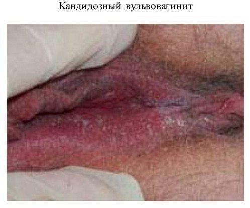 Кандидозный вульвовагинит — симптомы и лечение