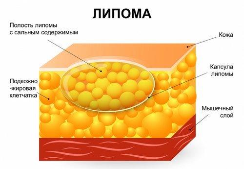 Липома — симптомы и лечение, фото и видео