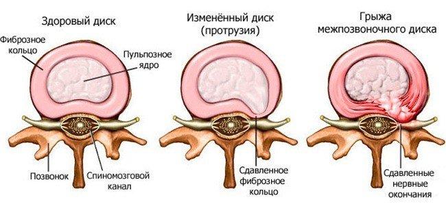 Грыжа грудного отдела позвоночника — симптомы и лечение