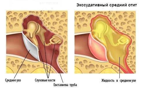 Экссудативный отит — симптомы и лечение