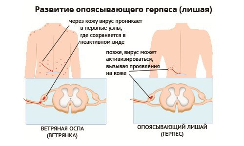 Постгерпетическая невралгия — симптомы и лечение