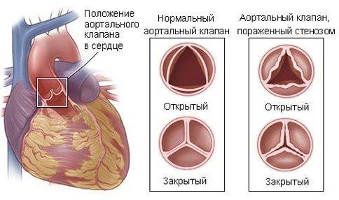Стеноз — симптомы и лечение