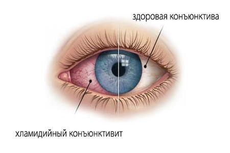 Хламидийный конъюнктивит офтальмохламидиоз — симптомы и лечение