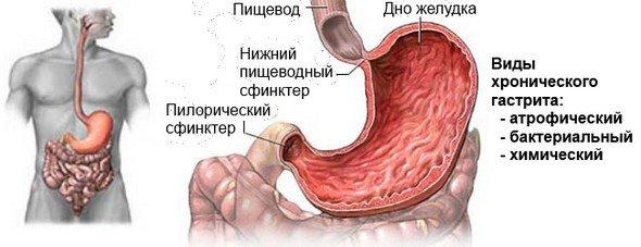 Хронический гастрит — симптомы и лечение