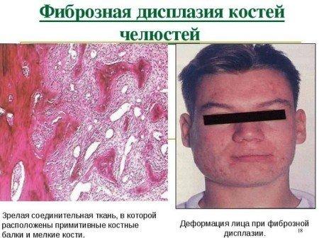Фиброзная дисплазия — симптомы и лечение