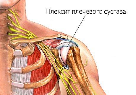 Плексит — симптомы и лечение