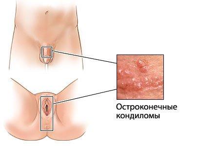 Папилломатоз — симптомы и лечение