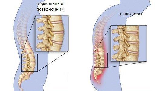 Спондилит — симптомы и лечение