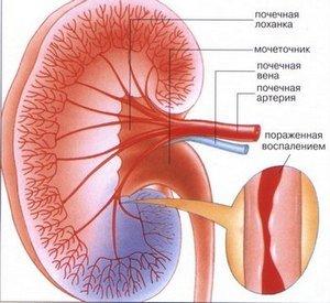 Узелковый периартериит болезнь Куссмауля-Майера — симптомы и лечение