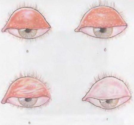Трахома — симптомы и лечение